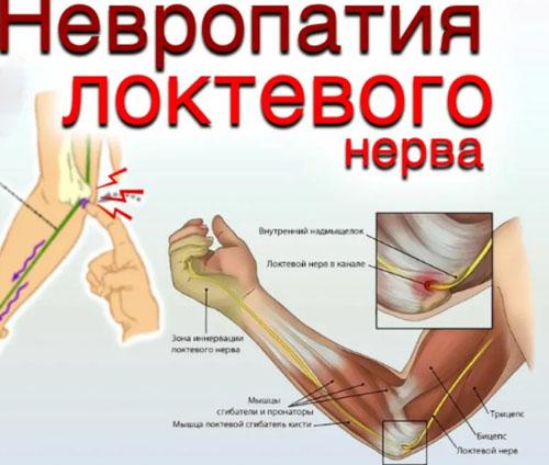 Причины невропатии локтевого нерва